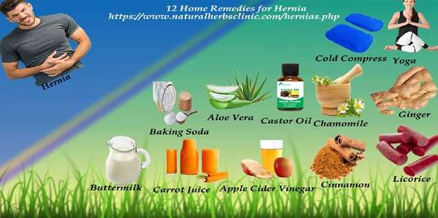 12 Home Remedies for Hernia