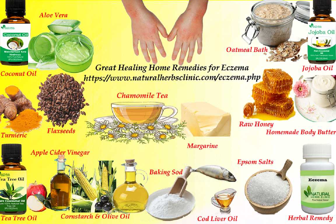 16 Great Healing Home Remedies for Eczema