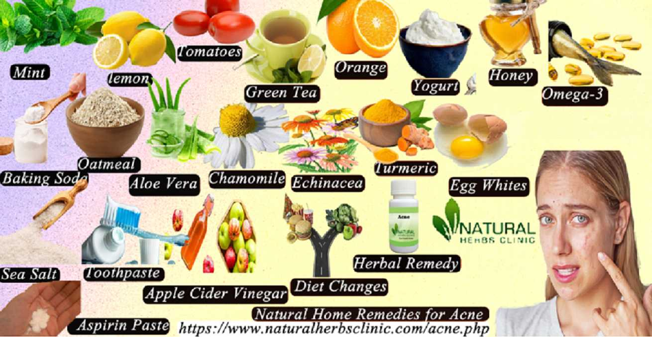 20 Natural Home Remedies for Acne